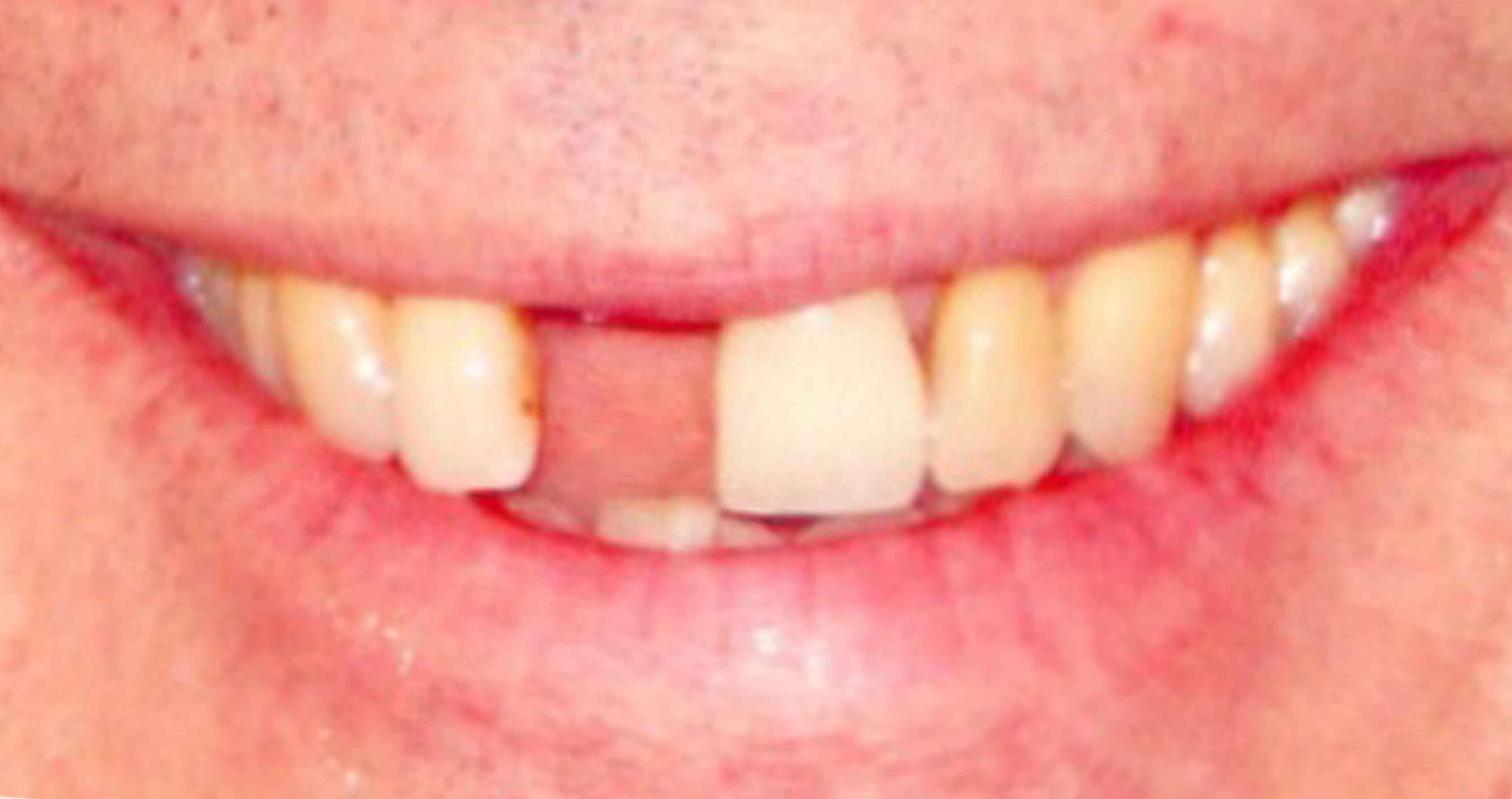 Cosmetic Dentistry San Rafael before and after procedure